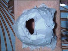 石膏パック NISHIMIKIのフォト