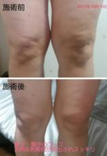 写真 上 施術前   膝回り 老廃物 脂肪が…  写真 下 施術後   たった一回でスッキリ! 磯田 美紀のスタイル