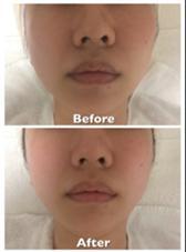 修正無しの同じライトですが、撮影は難しい・・・。しかし、肌の艶や透明感がアップし、毛穴も目立ちにくくなりました☺顔左側が少し下がりぎみでしたが、リフトアップしてバランスが整いました唇も血行がよくなり乾燥が軽減したことで、色味の良い唇に POLA所属・ミヤマ アヤコのフォト