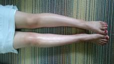 浮腫を取り除くと、左右が全然違います! ガーベラ所属・若月苗子のフォト