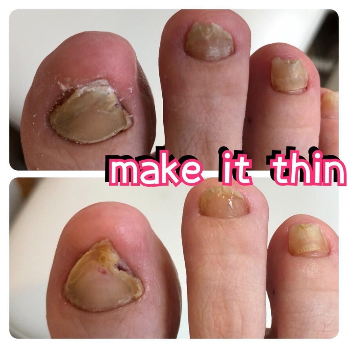 ネイル 肥厚した爪が痛いお客様削って薄くしました靴が当たら