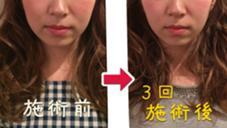 ◻︎くちの歪みが改善された ◻︎顔がひとまわり小さくなった ◻︎たるみが改善され頬の位置が高くなった BLANCHENEIGE 心斎橋のフォト
