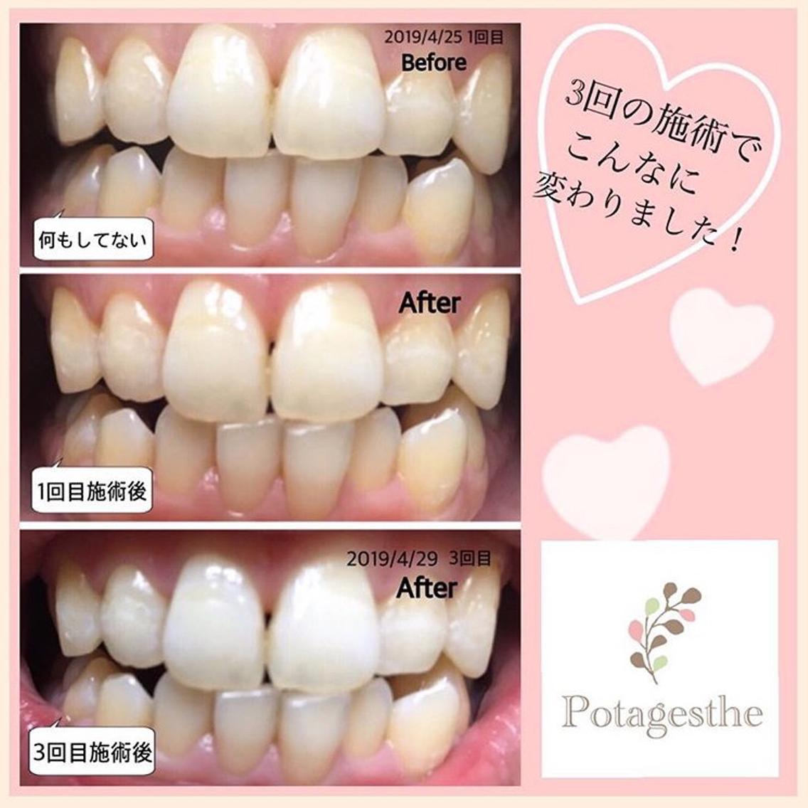 #その他 歯のエステ🦷セルフホワイトニング 3回でこんなに白くなりました!! 当サロンで行った施術効果のお写真です♪