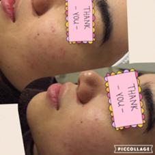 適切なケアでどんどんきれいな肌に…!  《じんわーり温か濃密美肌ミツロウパックコース✨(120分)》 〜wisteria〜   ウィステリア所属・植木きみえのフォト