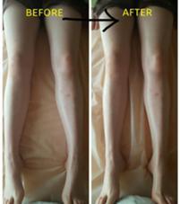 足の浮腫がとれてスッキリです! ほっこりサロンSORA所属・西澤景子のフォト