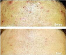 たった2回のお手当での変化です! 肌トラブル改善専門店Accueil所属・大谷桂代のフォト