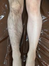 つるつるむき卵のようなお肌に! ライコンジャパン所属・ライコンジャパンのフォト