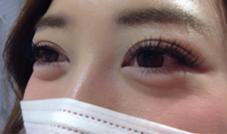 Cカール 10.11.12mm miq池袋東口店所属・♡akariのフォト