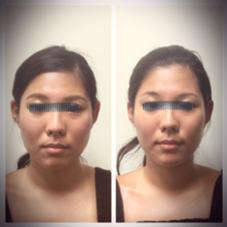 1回で輪郭くっきり。 小顔シンメトリーサロン BodyWorksNavi所属・骨格美容矯正士Yonezawaのフォト