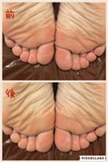 骨盤の歪みによって、脚の長さが異なっています。体の根本改善の見直しには骨盤矯正は必ず必要です(*^^*)。施術前、後のお写真になります✨ KaPilina所属・F☆Asu☺︎のフォト