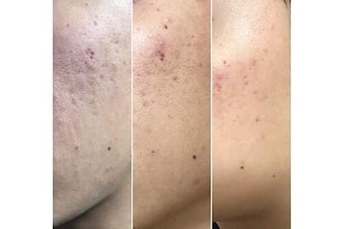 #メンズ #その他 ニキビ跡、ニキビ肌、凹凸クレーター肌、 顔だけでなく、背中のニキビ跡など アトピー肌、艶のない髪の毛、薄毛、 シワ、しみなど…全身の肌が同時にコラーゲンマシンのライトで照射します。 一度でサラサラ肌に! 続けることで、劇的な変化を自分でも周りからもわかる 美肌に♡  酸素カプセルルーム(50分)を併用することでさらに効果アップします。  既存の方や、チケットの方を優先にさせていただく場合もございます。  ⚠️ご予約の際には、お気に入り登録をお願いします