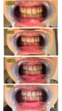 ホワイトニング経過写真です♩長い年月をかけて歯の隙間にこびりついた着色汚れを落としていくので、一度でパッと明るくなるのは難しいですが、繰り返しホワイトニングすることで少しずつ着色汚れを落として徐々に透明感のある白さに近づいていきます(^^) LBS 池袋店所属・熊倉あやなのスタイル