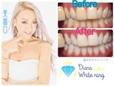 メディアで話題の美歯口ホワイトニング‼️ DianaWhitening所属・岩山幸香のスタイル