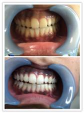 歯のセルフホワイトニング✨✨✨ 8分間を2回の施術が1セットとなります。 2回、通った結果です。 かなり白くなったと喜んで頂きました。 Miss Cleo(自宅サロン)所属・笹本美幸のフォト