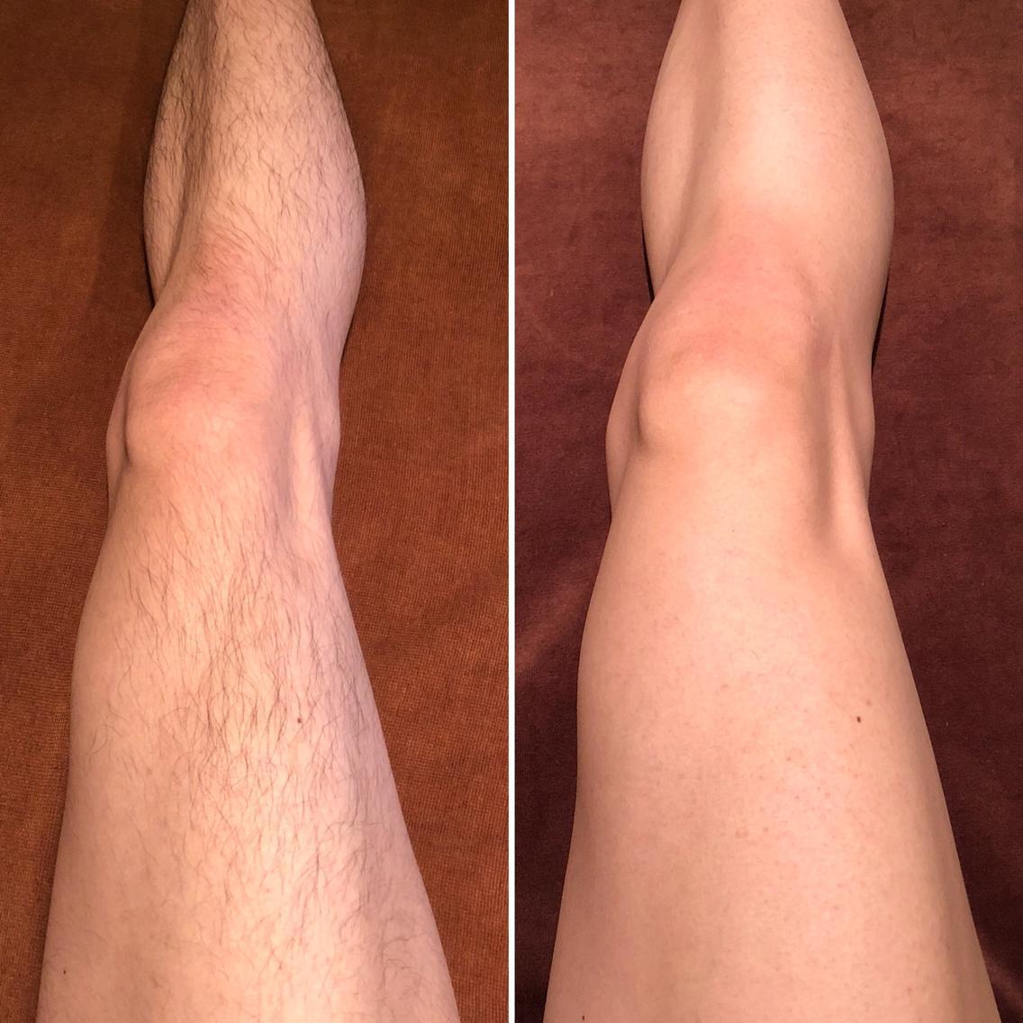 #その他 左◀️施術前 右▶️施術後1ヶ月(1ヶ月剃っていません)  1度の施術で減毛&脱毛&育毛がストップしました! 1度でもこんなに違いが出ますよ✨