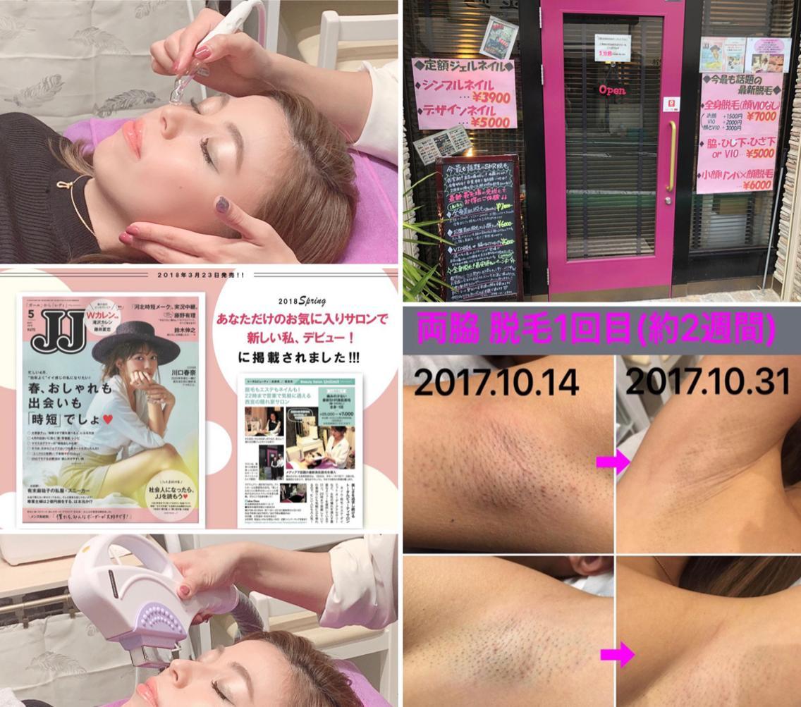 Beauty SalonUnlimit【アンリミット】所属・森谷莉美の掲載