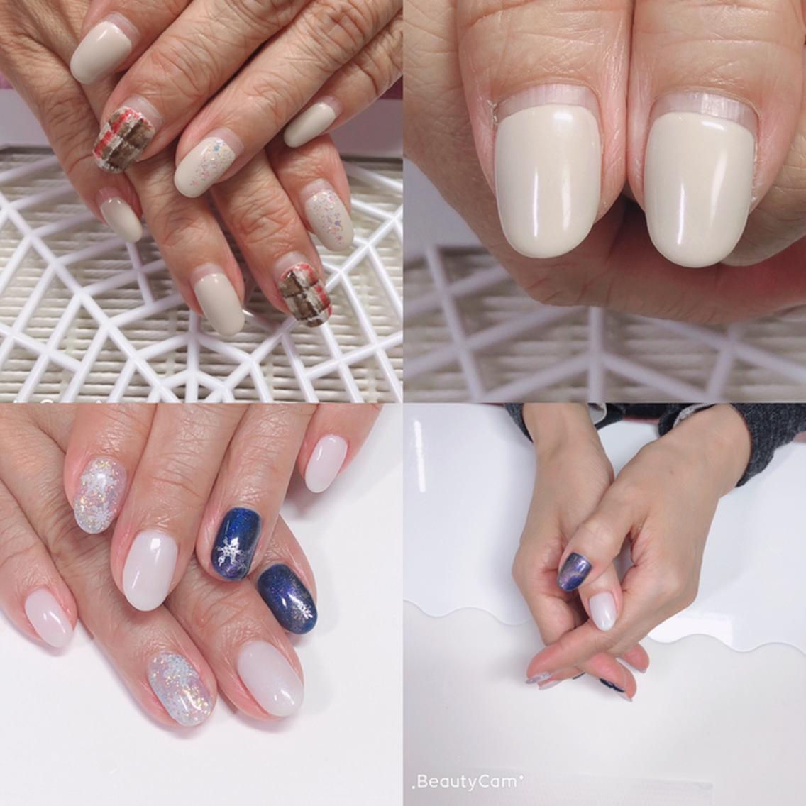 .Nails Mio所属・美爪、巻爪、深爪MioHanedaの掲載