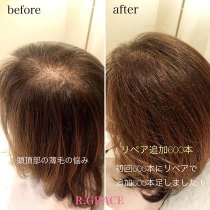 女性の悩みに多い、頭頂部の薄毛。エアエクをやることでふんわりボリュームを出すことができます! お風呂、シャンプー、トリートメント、カラー、カットなど日常のケアも変わらず行うことが可能です! 2〜3ヶ月に1度のリペアで継続ができます。