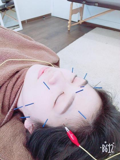 美顔鍼💕(電気付き無料)