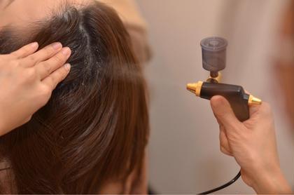 オプションメニューの 頭皮スッキリ!炭酸洗浄!  シャンプーだけでは落としきれない 毛穴の汚れや詰まりを炭酸ミストシャワーで 洗い飛ばして頭皮健やかに❗️ 定期的な施術がオススメです✨