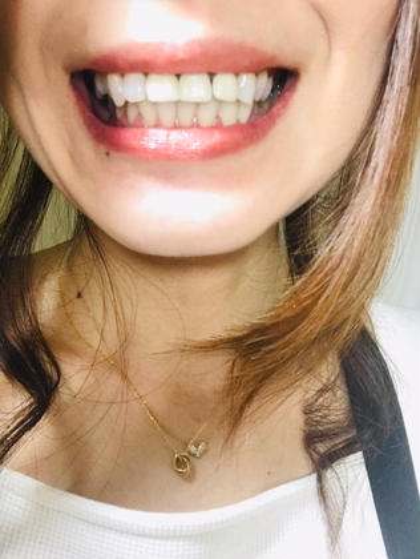 【3回照射施術後写真】 キレイに3トーンは上がりました✨😍 お気に入りのリップも白い歯でとっても映えます(*´v`*) スッキリです☆