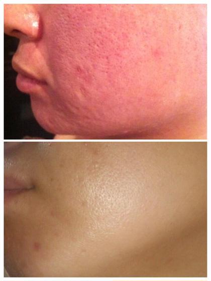 ニキビ、ニキビ跡 トラブル改善専門 施術2回 皮膚再生療法 エステティックサロン LuNa所属・LuNarumiのフォト