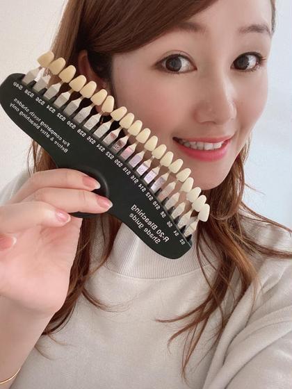 歯のホワイトニング〈4来店〉メンテナンス(有効期間3ヶ月)