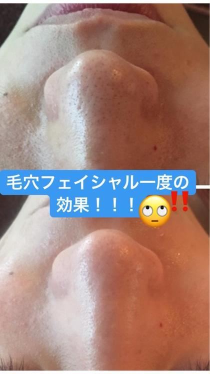 【2018年新メニュー!初回限定】ゆんころブログ掲載毛穴集中フェイシャル50分