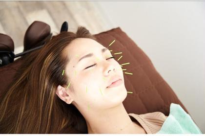 【美容はりスタンダード 】  お顔への鍼とお顔への美顔整体のセット