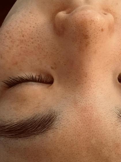 毛穴の黒ずみには毛穴洗浄✨ 毛穴の開きには美容液導入✨ たるみ毛穴にはハーブピーリング🌿 肌状態に合わせて変更可能です!
