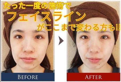 ★当店1番人気 3D小顔フェイシャルエステ体験★ ✨肌質改善✨触りたくなるモチモチ肌へ❤️小顔スペシャル❤️