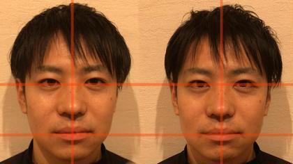 ヘッドスパは顔面矯正も含まれます。