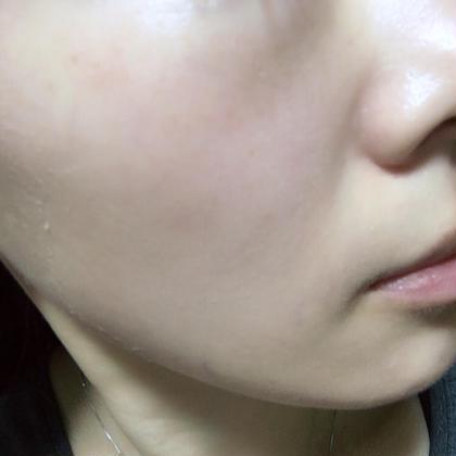 菅貞子ハーブピーリング導入6日目 (顔周りに少し剥離が残ってます) シミも薄くなり毛穴も小さくなり、きめ細やかなツヤ肌になります✨