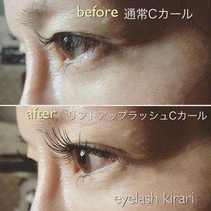 マツエク・マツパ 先日のお客様♡ アップワードラッシュ✨ . 上の画像は通常で付けたCカール。 下の画像はアップワードラッシュで付けたCカールです。 . 通常の付け方ですとまつ毛が一度下がって上がっているため、瞳にかぶってしまい重たい印象に…。 . リフトアップラッシュで装着すると白目にエクステが被らず影が出来ないので瞳が大きくみえます☺︎