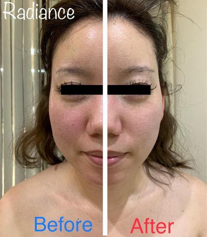【超絶小顔コース】💆♀️毛穴洗浄・リンパ流し・超小顔パック・極上保湿で毛穴引き締め驚きの肌質へ🌟