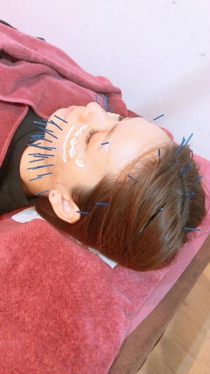 人気です❣️初花美容鍼⭐️しっかりお顔に70本コース※ ヒト幹細胞エキス配合シートマスク付き