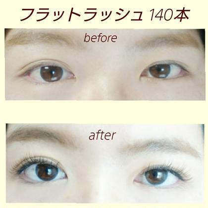 左右目の形を変えています プライベートサロンるい所属・小坂瑠以のフォト
