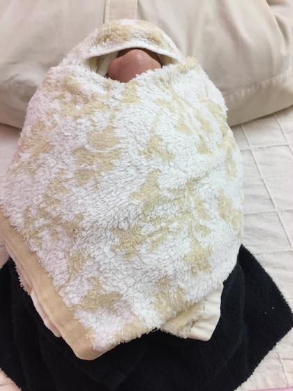 思春期ニキビ・大人ニキビ・ニキビ跡ケア【40分】