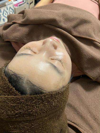 陶肌トリートメント(肌質改善集中)1回