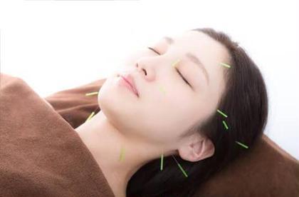 ✨【肌くすみ•ざらざら•ニキビ肌】✨小顔美容鍼+エレクトロクレンジング+高濃度美白パック💠肌診断付き💠