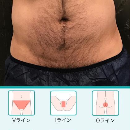 MENS★美肌脱毛★VIO【1箇所】orギャランドゥー全体