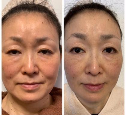 美容鍼1回の2ヶ月後  たるみ改善コース