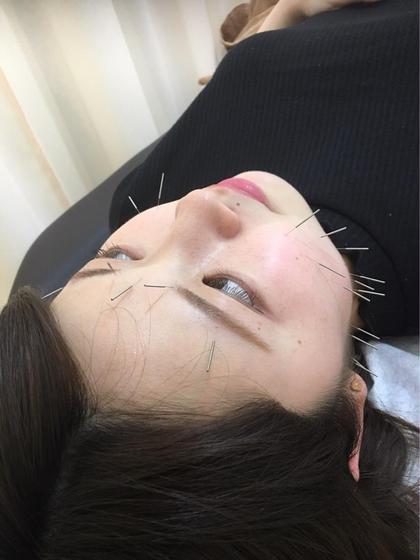 美顔鍼(美容鍼)+美容整体😍🐾🐾