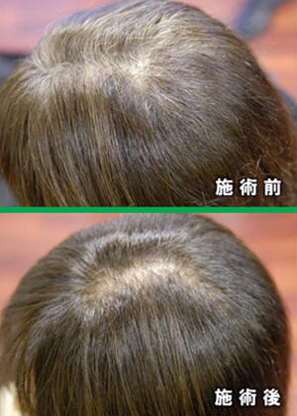 【新規】『ノンアルカリでヘナよりも上質』ノンダメージ香草カラー(白髪染め専用)