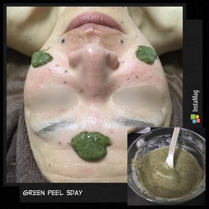 グリーンピール5dayでは、2.5gのハーブを入れ込みします。入れ込みする時にはザラザラ感やチクチク感がありますがお肌の奥に入っている証拠です。 3,4日目にはいらない角質がめくれてきます。 Reeey Salon所属・たけうちりえのフォト