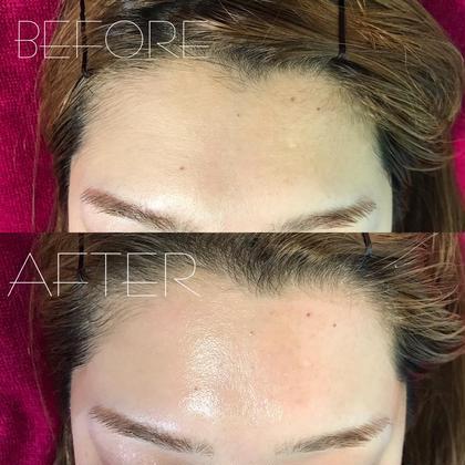フルフェイス脱毛/産毛も除去されお化粧のりが良くなります♪ 洗顔が楽になったとのお声も沢山寄せられます♪ Lunon ルノン所属・水原はなのスタイル