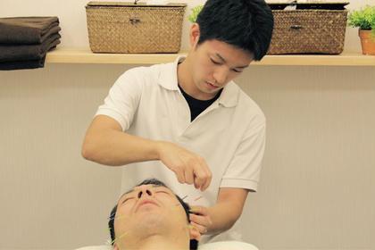 ☆美容鍼☆(リフトアップやむくみ改善による小顔促進効果があり年齢問わずおすすめ出来るメニューです♪)