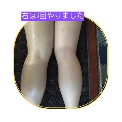 ふくらはぎ(特殊な美容機械で贅肉を減らす、痛みを取り)リピーターは7.000円  5回コースは30.000円
