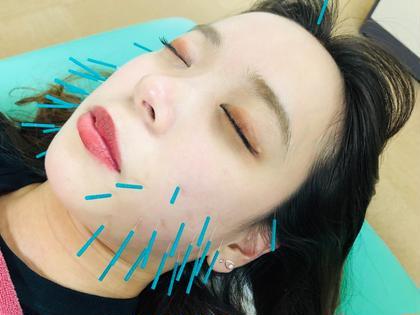 💄ウルトラリフト美容鍼コース💄Vフェイスラインの瞬間小顔を求める方に人気❣️