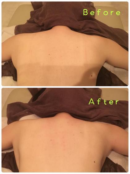 二の腕の付け根から脇のお肉がスッキリしました〜!!1回の施術でこの変化は凄いです\(^^)/